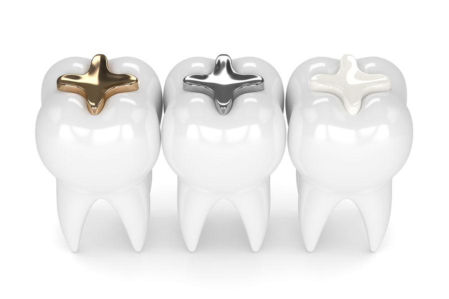 歯科治療で使う素材